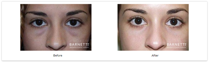 Eyelid Surgery Walnut Creek