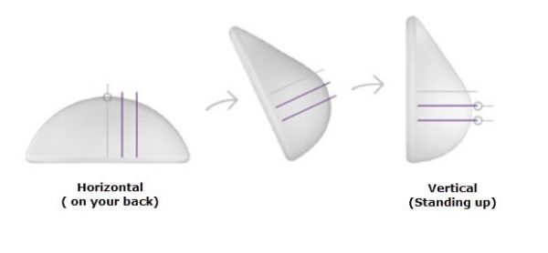 breaat implant shapes