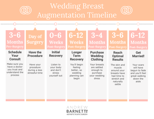 Wedding Breast Augmentation Timeline Walnut Creek