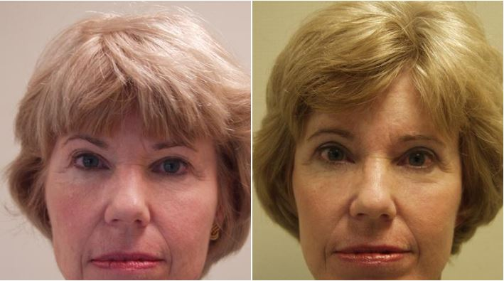 Facelift Walnut Creek