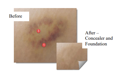 Post-Op Bruise Cover Up Walnut Creek