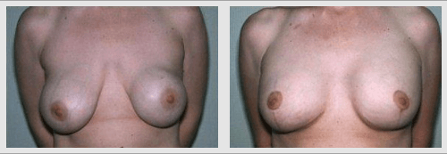 breast lift without surgery