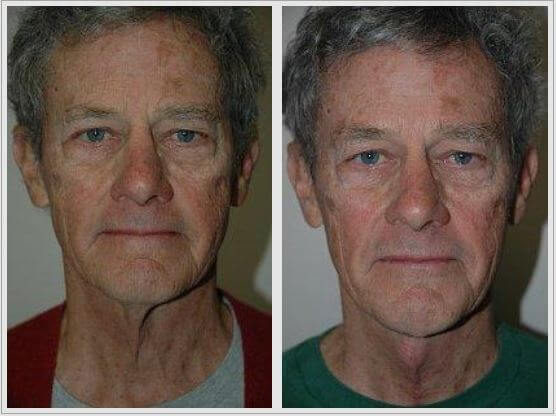 Neck Lift Before & After Photos